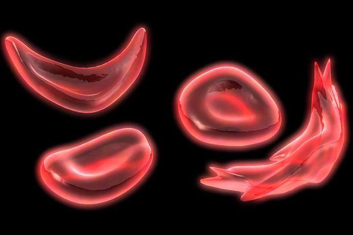 Global Blood Therapeutics Inc. (GBT) Soars 5.25%